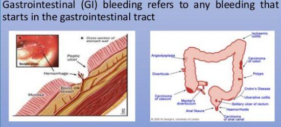 acute-gi-bleed-4-638
